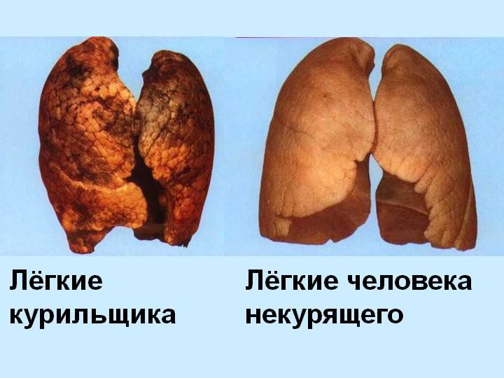 Как бросить курить самому отзывы
