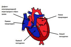 Врожденный порок сердца у ребенка курящей матери
