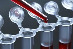 Биохимическое исследование крови для диагностики заболевания