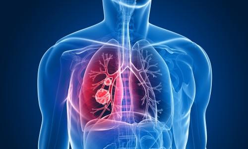 Проблема мелкоклеточного рака легких
