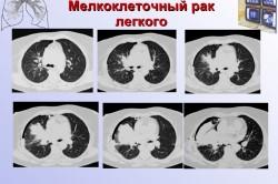 Мелкоклеточный рак легкого на рентгеновском снимке