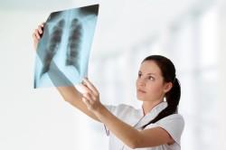 Рентген для оценки состояния легких